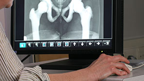 Examining an image of a pelvis x-ray